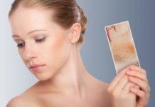 Псориаз себорейный симптомы и лечение