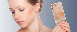 Псориаз себорейный: симптомы и лечение
