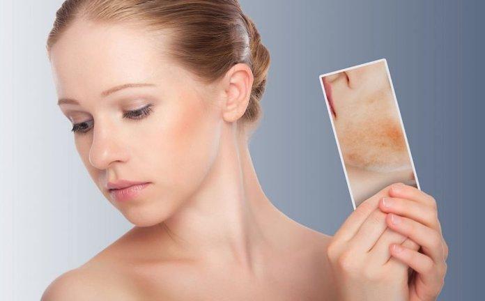 Себорейный псориаз волосистой части головы – симптомы и лечение. Жми!
