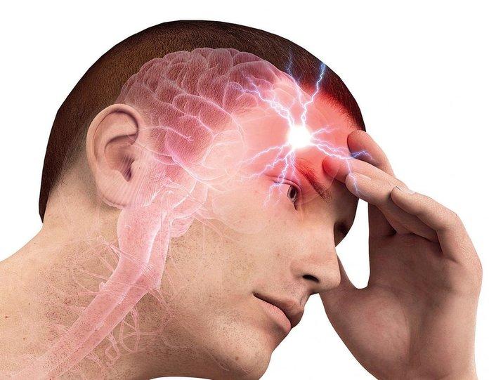 Осложнения дистонии