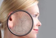 Псориаз начальной стадии симптомы и лечение