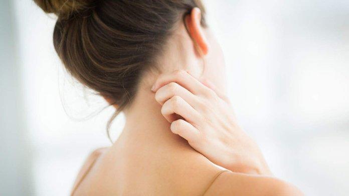Каплевидный псориаз: симптомы и лечение