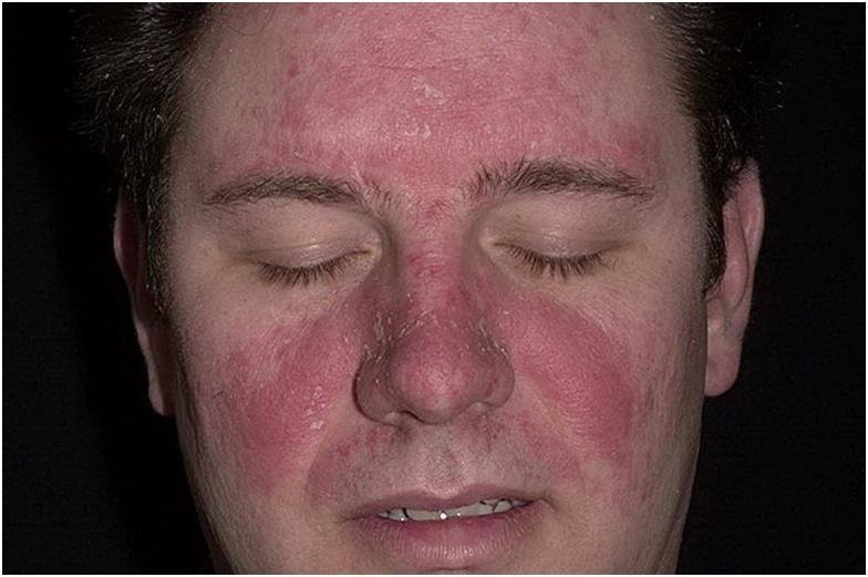 Чем снять покраснение кожи при псориазе