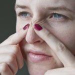 Как избавиться от прыщей на носу?