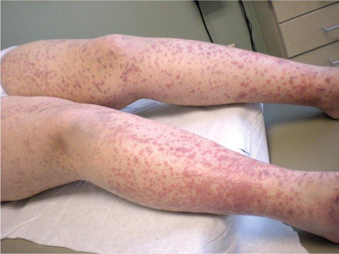Сыпь при патологиях сосудов и кровеносной системы