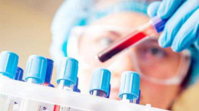 Анализ крови при дифиллоботриозе
