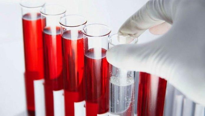 Анализ крови сдается на наличие инфекции в организме