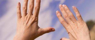 Ревматоидный артрит: симптомы и лечение