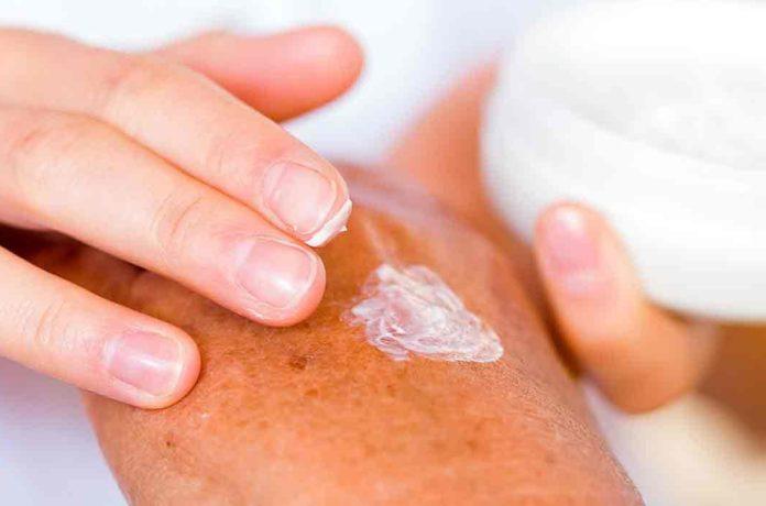 Врачебные доктрины и методики лечения пустулезного псориаза кремом