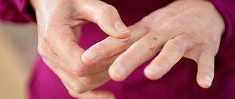 Псориатический артрит лечение и симптомы