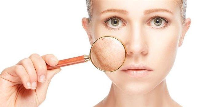 Пигментные пятна на лице: причины и лечение
