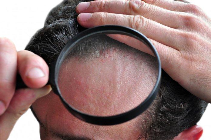 Диагностика волосистого псориаза