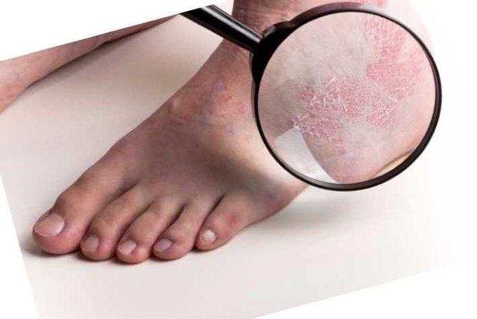 Ладонно-подошвенный псориаз причины симптомы лечение и отзывы