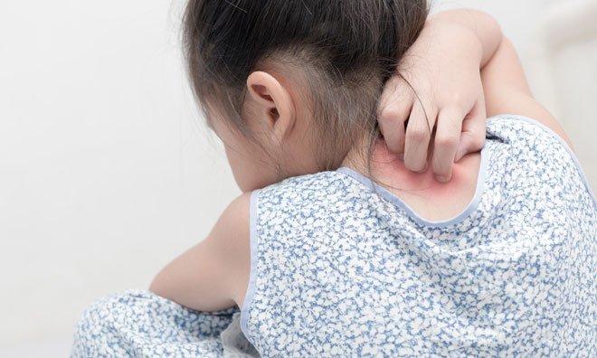 Факторы появления псориаза у детей