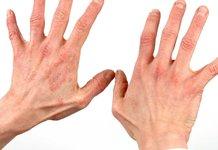 Как лечить псориаз на руках?