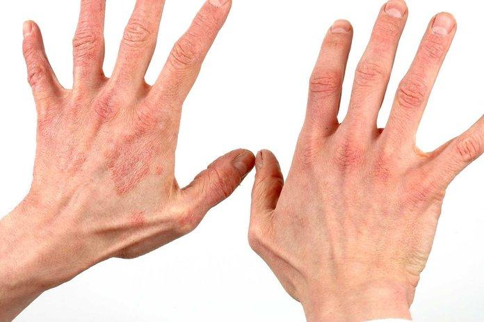 от чего появляется псориаз на руках