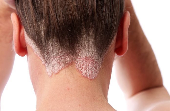 Причины развития псориаза на голове