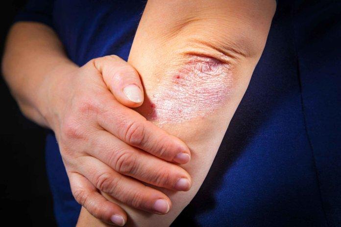 При подозрениях на осложненную форму псориаза врач может назначить рентгеноскопическое исследование, чтобы определить воздействие псориаза на суставы. Нередко пациенты жалуются на боли в коленях и локтях, но привычной для недуга сыпи в этих зонах нет. Лечение локтевого псориаза как лечить псориаз на локтях В тактике лечения псориаза на локтях врач преследует главную цель — максимально снизить внешние проявления болезни. Полностью убрать недуг из организма современной медицине не по силам. В терапию включаются медикаментозные средства наружного и внутреннего применения, физиопроцедуры, диеты. Выстраивая схему лечения, специалист подбирает средства от псориаза на локтях таким образом, чтобы они дополняли и усиливали действие друг друга. Мази и кремы Наружные средства в лечении псориаза играют основную роль, ведь при их регулярном применении исчезают бляшки, главные приметы болезни, доставляющие наибольший дискомфорт человеку. Сегодня в аптеке можно купить эффективные мази: Унидерм, снимающая воспаление и замедляющая процесс разрастания больных клеток кожи. Применяют 1 раз в сутки, намазывая на пораженную зону локтя; Карталин-крем. Обладает натуральной основой, в которой присутствует витамин А и растительные масла. При 2-х разовом применении за сутки помогает быстрому заживлению воспаленных участков кожи, надолго останавливает появление новых бляшек, купирует зуд; Антипсор действует против зуда и покраснения кожи. Требуется долгий курс, 2-3 месяца, применения средства. Пероральные препараты при псориазе Пероральные средства от псориаза на локтях назначаются тогда, когда мази и кремы не дали видимых результатов. При этом сохраняется комплексный подход, когда принимают сразу несколько лекарств различного действия: седативные средства (Зодак, Кларитин, Фенистил) против отеков и зуда; успокаивающие (Ново-Пассит, Персен, пустырник, валериана), снимающие нервное напряжение; противовоспалительные препараты (Ибупрофен, Ортофен, Напроксен), купирующие болевой симптом. Народные 