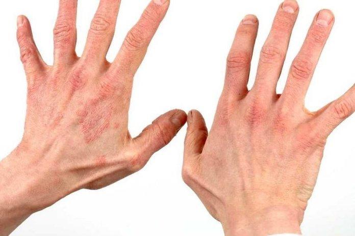 Псориаз на руках типы причины и способы лечения