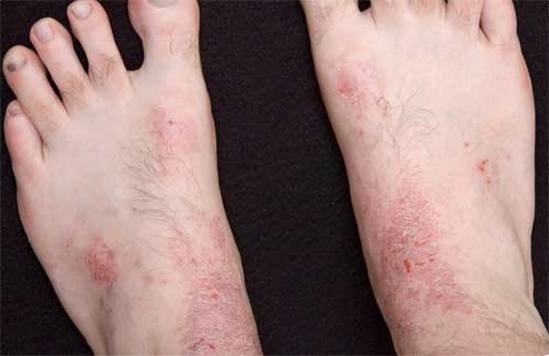 Фото псориаза на руках пальцах и ногтях. Симптомы и признаки