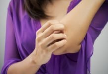 Псориаз пустулезный лечение и симптомы