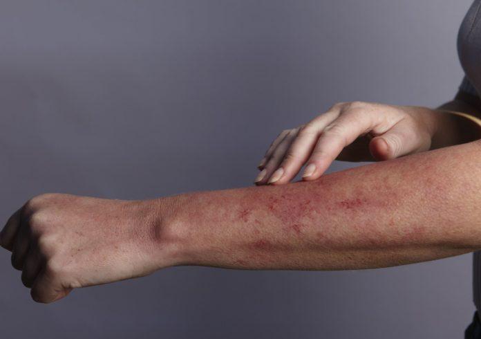 Аллергия при передозировке Тарка