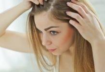 Как лечить псориаз на голове?