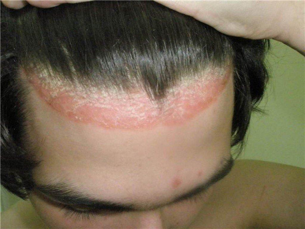 Что такое псориаз на голове