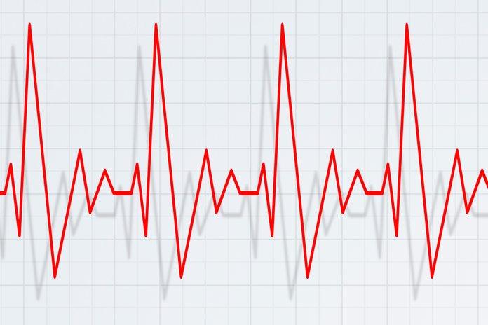 Причины тахикардии при низком давлении