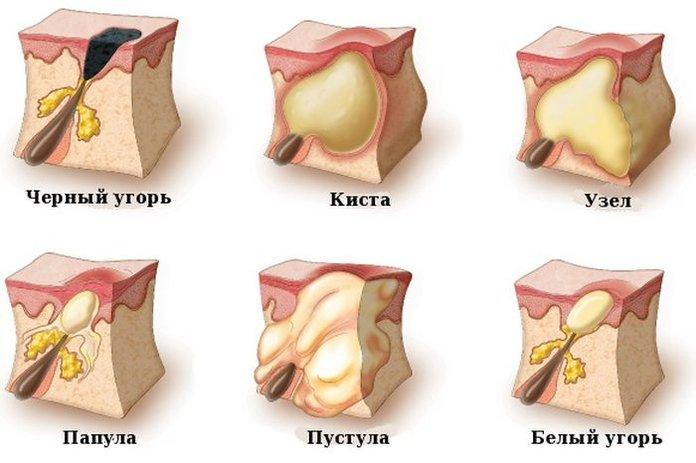 Как избавиться от псориаза на лобке
