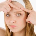Как избавиться от прыщей на лице — препараты от прыщей