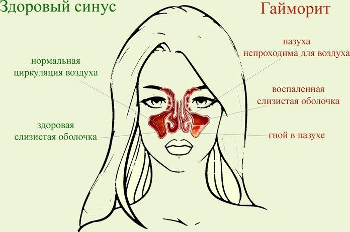 Проявления гайморита