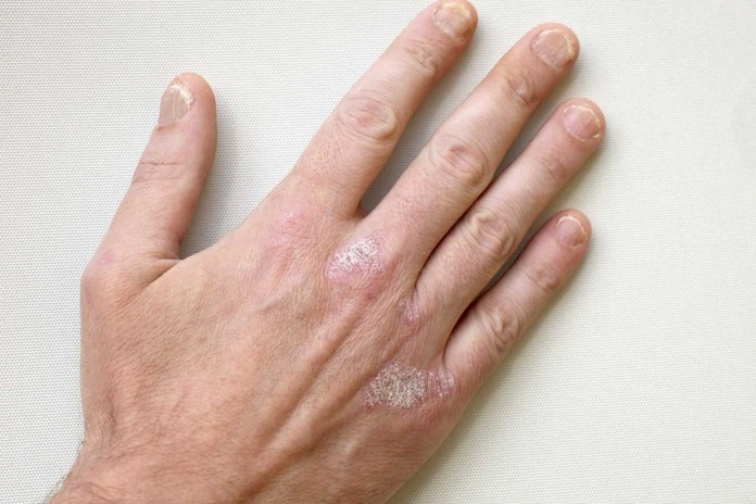 Руки, пораженные псориазом