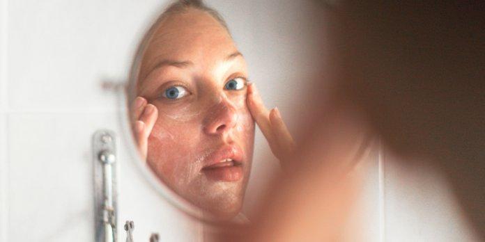 Женщина наносит мазь от псориаза