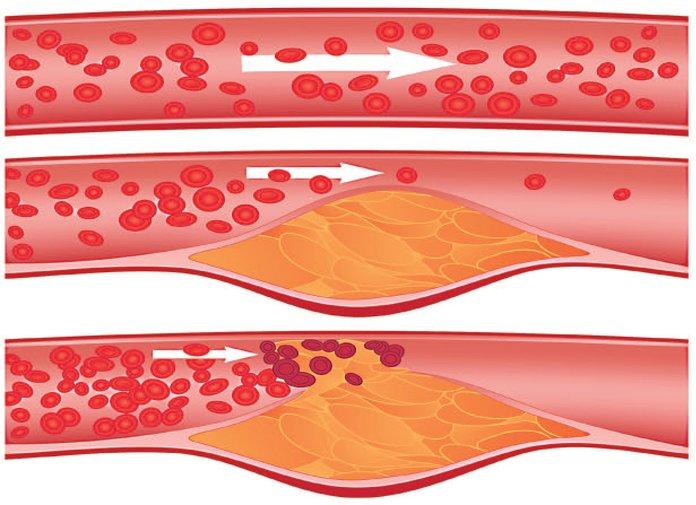 Развитие атеросклероза сосудов