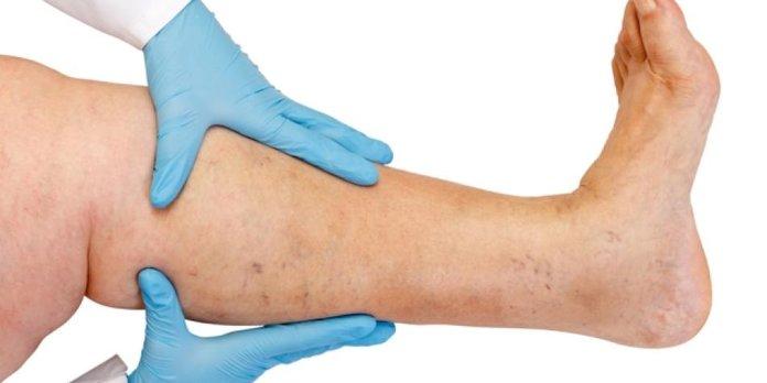 Диагностика красных пятен на ногах