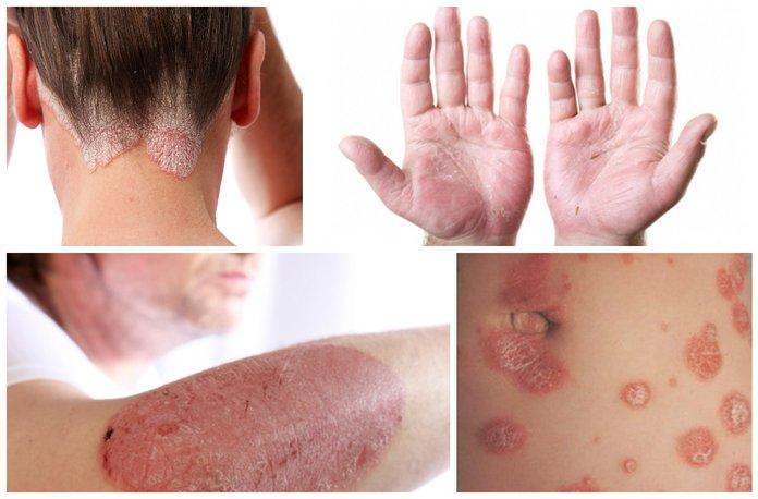 Псориаз - причины симптомы лечение