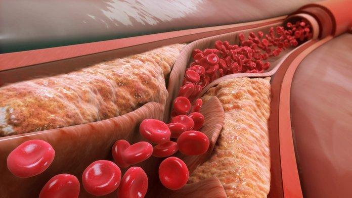 Атеросклероз - взгляд изнутри