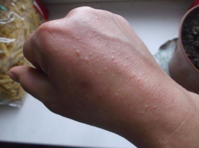 Сыпь на руках в виде мелких прыщей