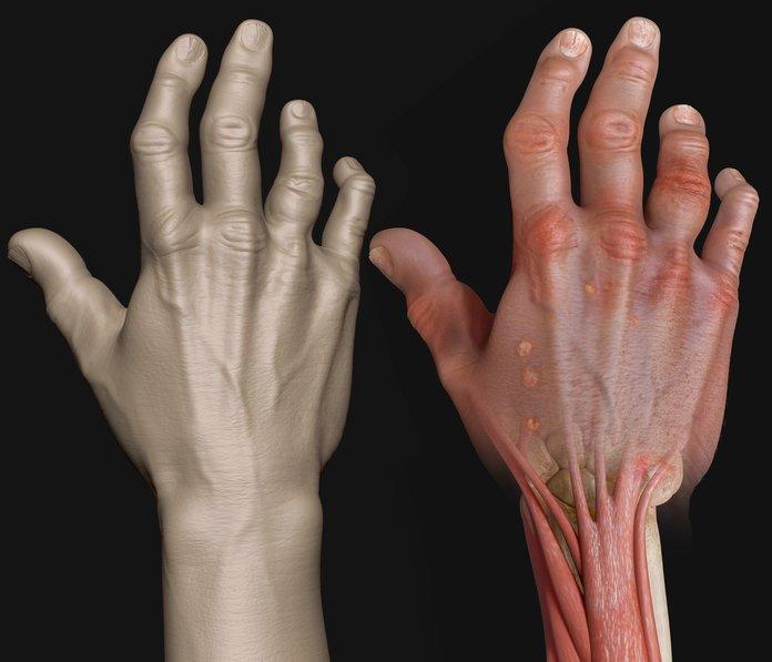 Деформации при псориатическом артрите