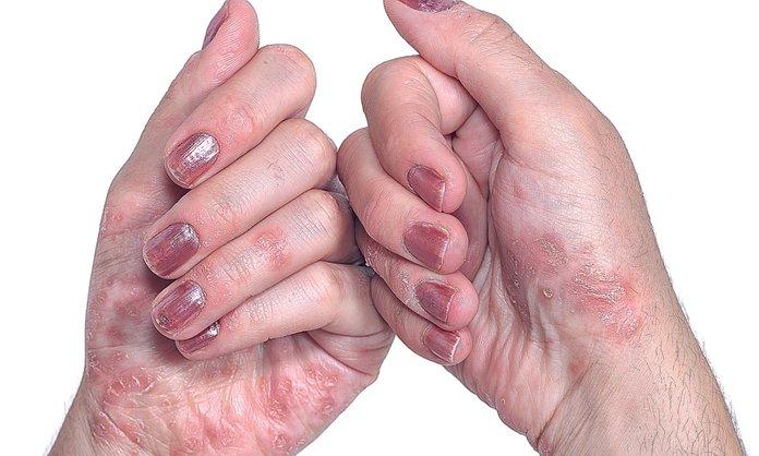 Тяжелая форма псориаза на руках женщины