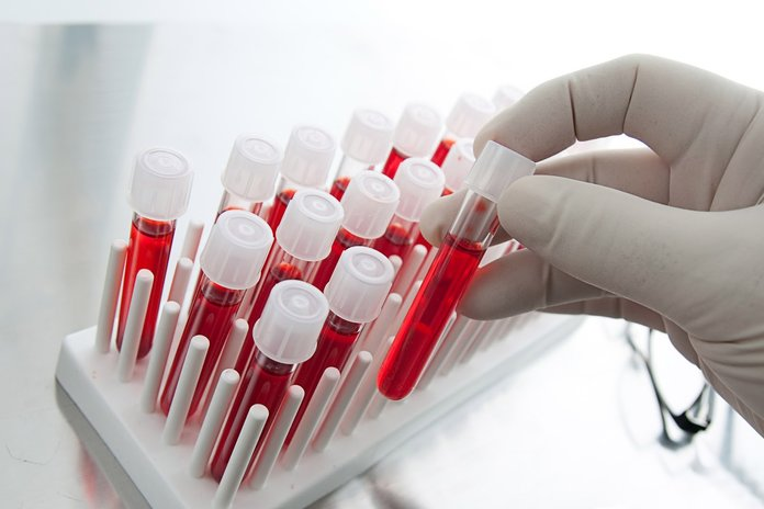 Капсулы с анализами крови