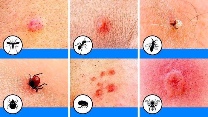 Виды красных пятен после укусов насекомых