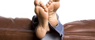 Как лечить ладонно-подошвенный псориаз?