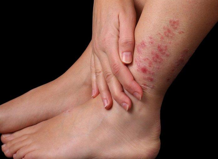 Псориатические поражения на коже и суставах