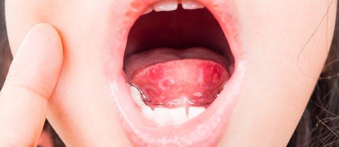Диагностика красных пятен на языке