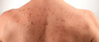 Как избавиться от пигментных пятен на спине?