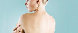 Как избавиться от прыщей на плечах?