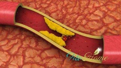 уксус от холестерина