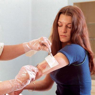 лечение руки у врача